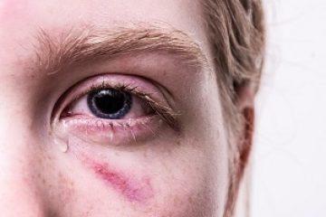 תאונת עבודה שגרמה לפגיעה בעין